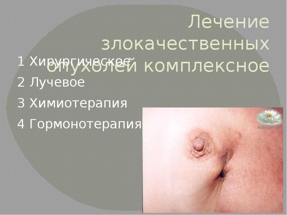 Лечение злокачественных опухолей комплексное 1 Хирургическое 2 Лучевое 3 Хими...
