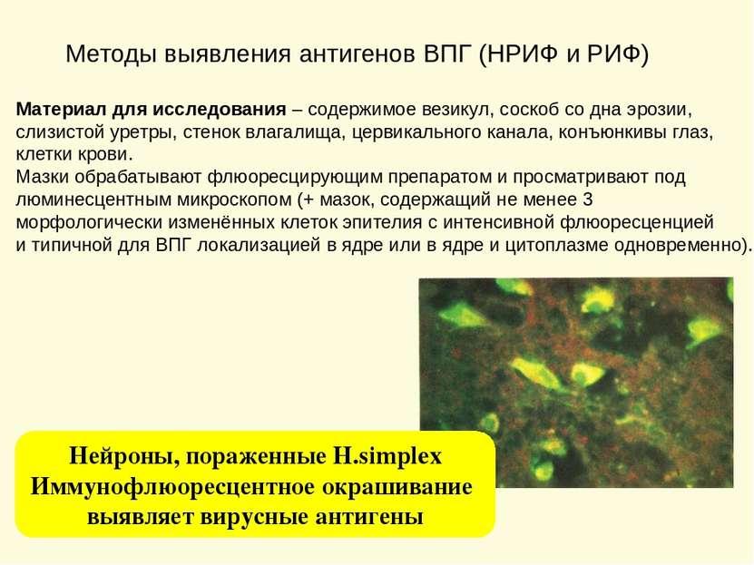 Методы выявления антигенов ВПГ (НРИФ и РИФ) Материал для исследования – содер...