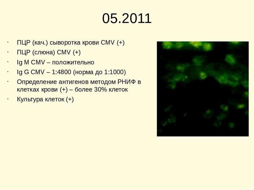 05.2011 ПЦР (кач.) сыворотка крови CMV (+) ПЦР (слюна) CMV (+) Ig M CMV – пол...