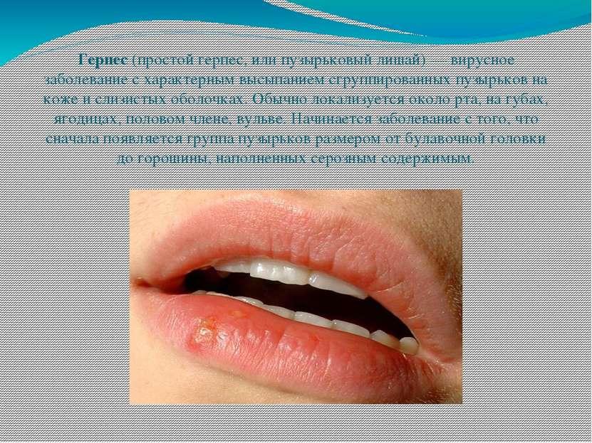 Герпес(простой герпес, или пузырьковый лишай) — вирусное заболевание с харак...