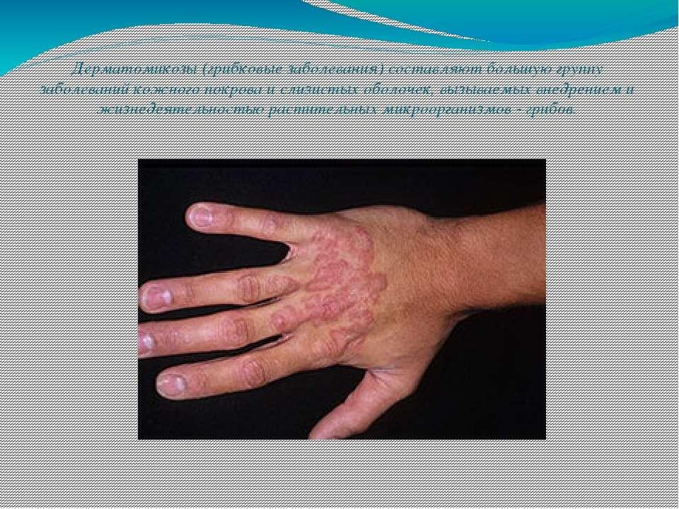 Дерматомикозы (грибковые заболевания) составляют большую группу заболеваний к...