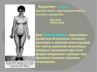 Для полной формы характерны развитые вторичные половые признаки и наличие мен...