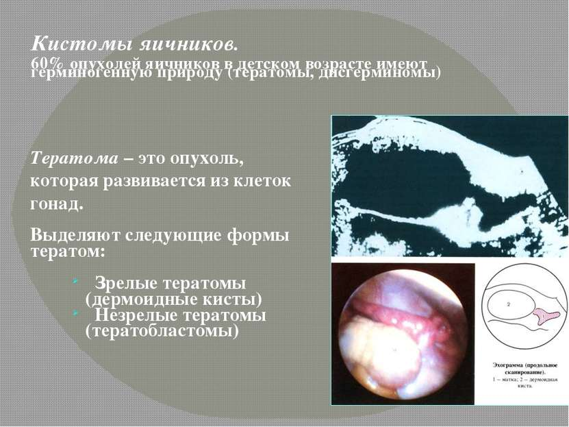 Кистомы яичников. 60% опухолей яичников в детском возрасте имеют герминогенну...