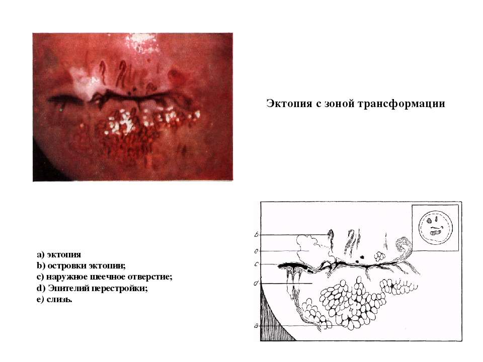 Эктопия с зоной трансформации а) эктопия b) островки эктопии; с) наружное шее...