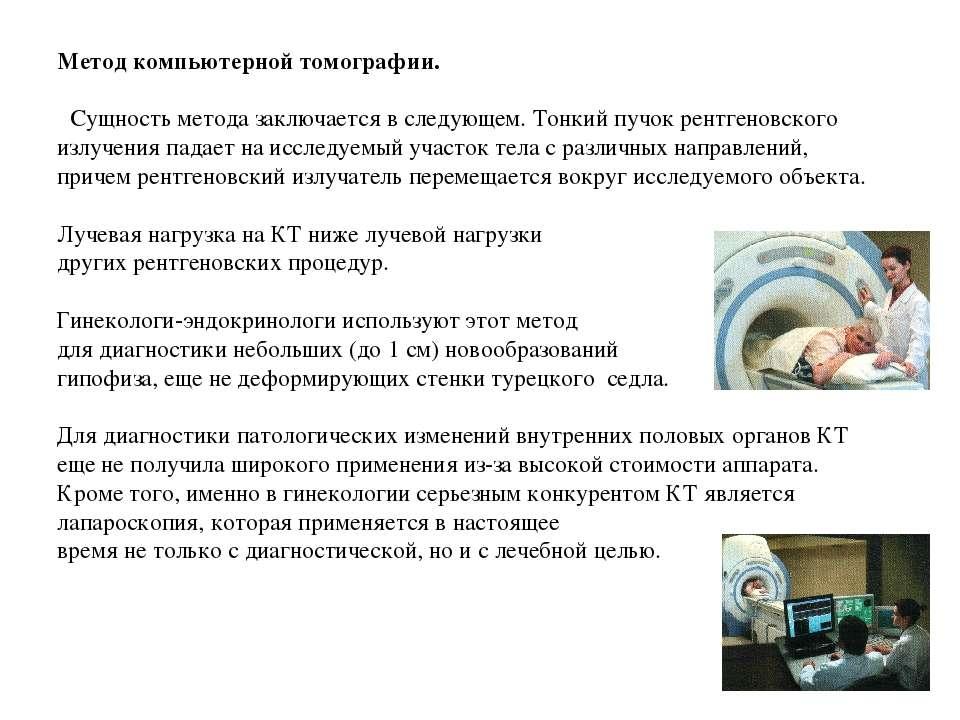 Метод компьютерной томографии.  Сущность метода заключается в следующем. Тон...