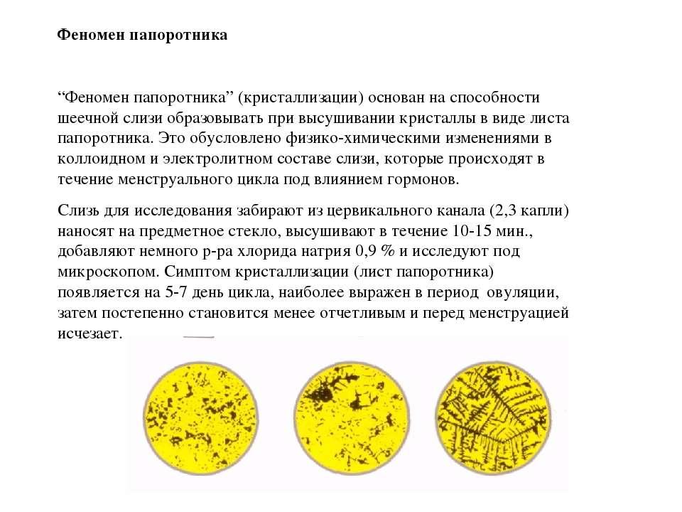 "Феномен папоротника ""Феномен папоротника"" (кристаллизации) основан на способн..."