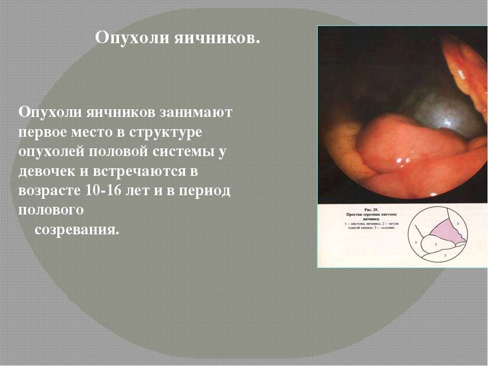 Злокачественные опухоли могут возникать в любом органе женской половой системы – вульве (наружных половых органах), влагалище, шейке матки, матке, маточных трубах или яичниках.