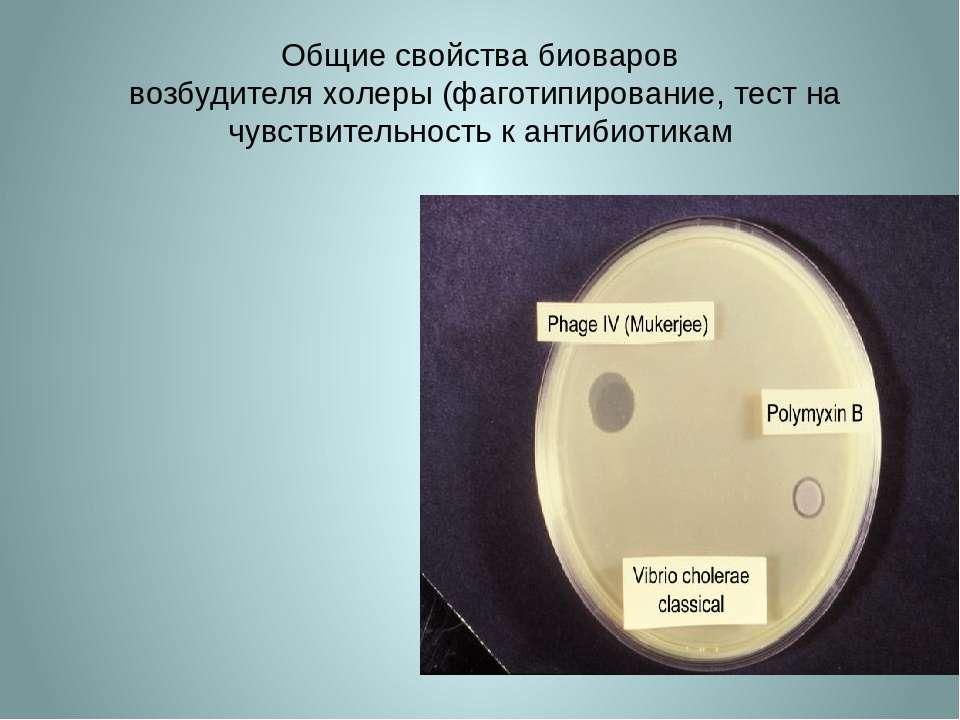 Общие свойства биоваров возбудителя холеры (фаготипирование, тест на чувствит...