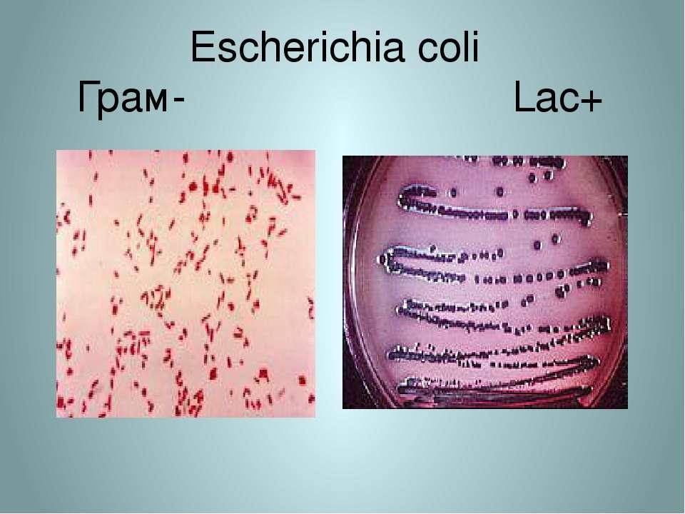 Escherichia coli Грам- Lac+