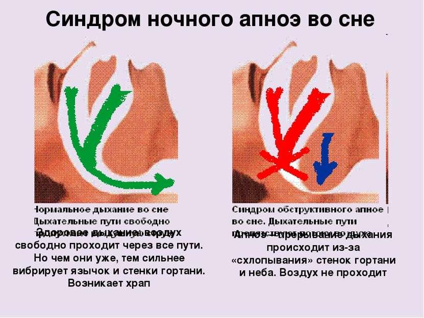 Апноэ – прерывание дыхания происходит из-за «схлопывания» стенок гортани и не...