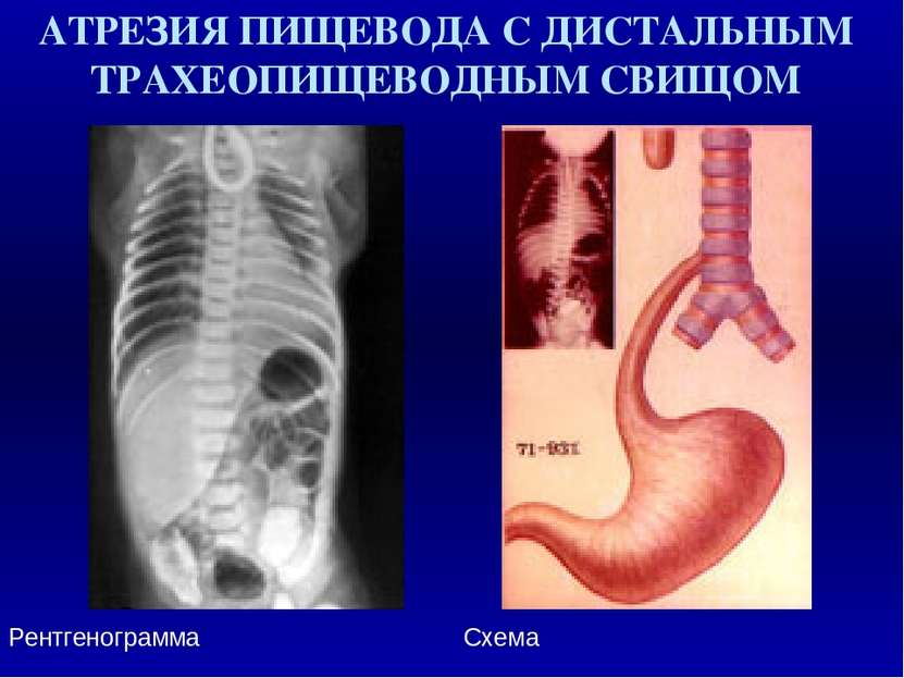 АТРЕЗИЯ ПИЩЕВОДА С ДИСТАЛЬНЫМ ТРАХЕОПИЩЕВОДНЫМ СВИЩОМ Рентгенограмма Схема