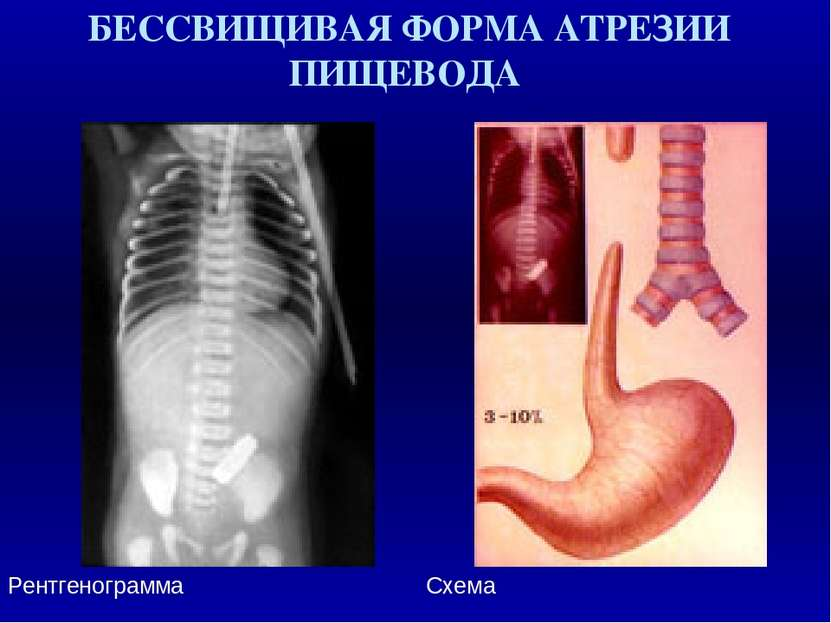 БЕССВИЩИВАЯ ФОРМА АТРЕЗИИ ПИЩЕВОДА Рентгенограмма Схема