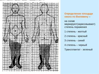 Определение площади ожога по Вилявину – на схеме маркируют(зарисовывают) степ...