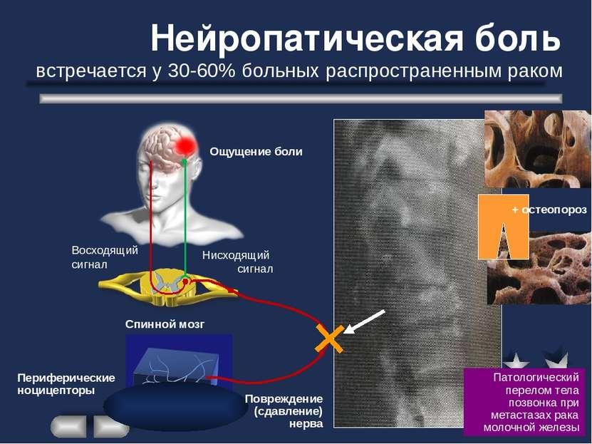 Восходящий сигнал Нисходящий сигнал Ощущение боли Спинной мозг Периферические...