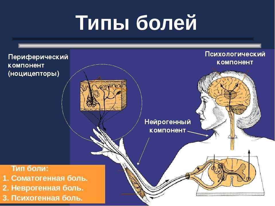 Типы болей Периферический компонент (ноцицепторы) Нейрогенный компонент Психо...