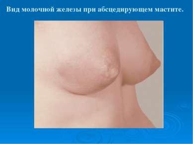 Вид молочной железы при абсцедирующем мастите.