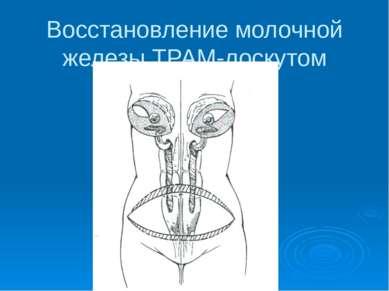 Восстановление молочной железы ТРАМ-лоскутом