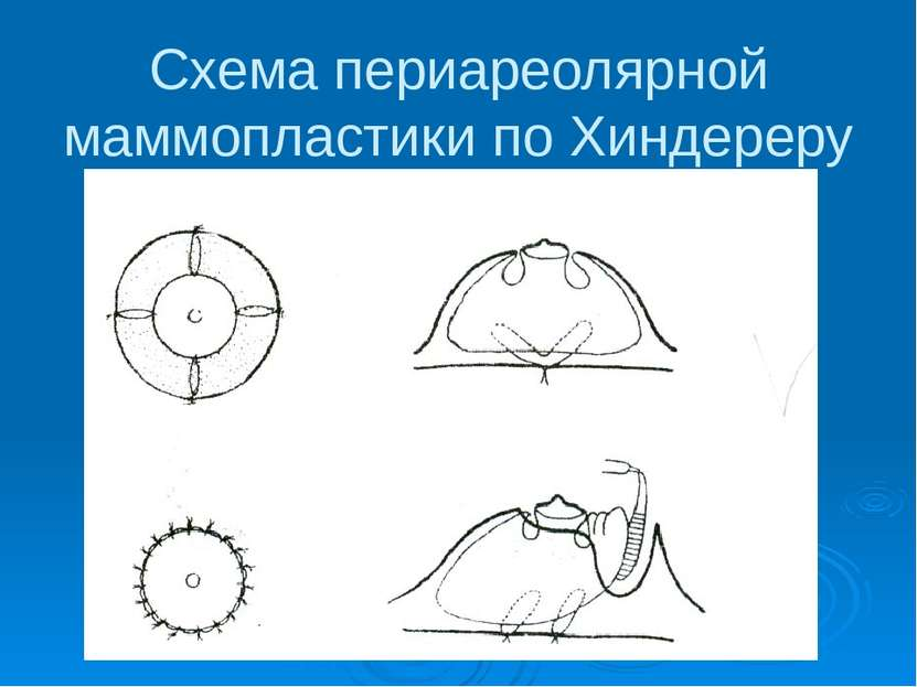 Схема периареолярной маммопластики по Хиндереру