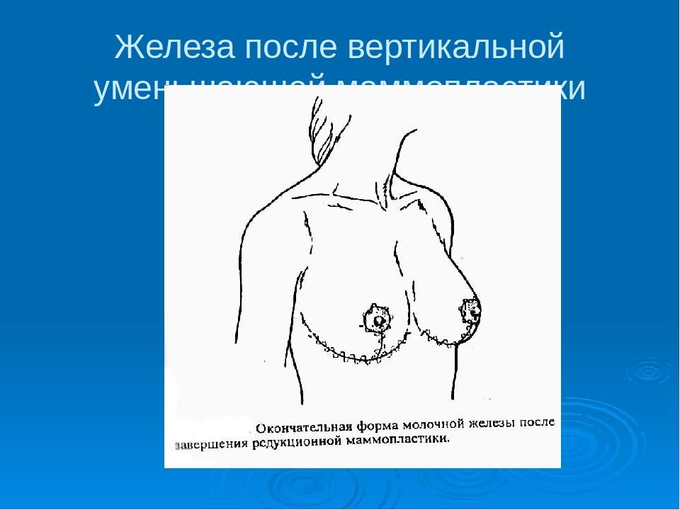Железа после вертикальной уменьшающей маммопластики
