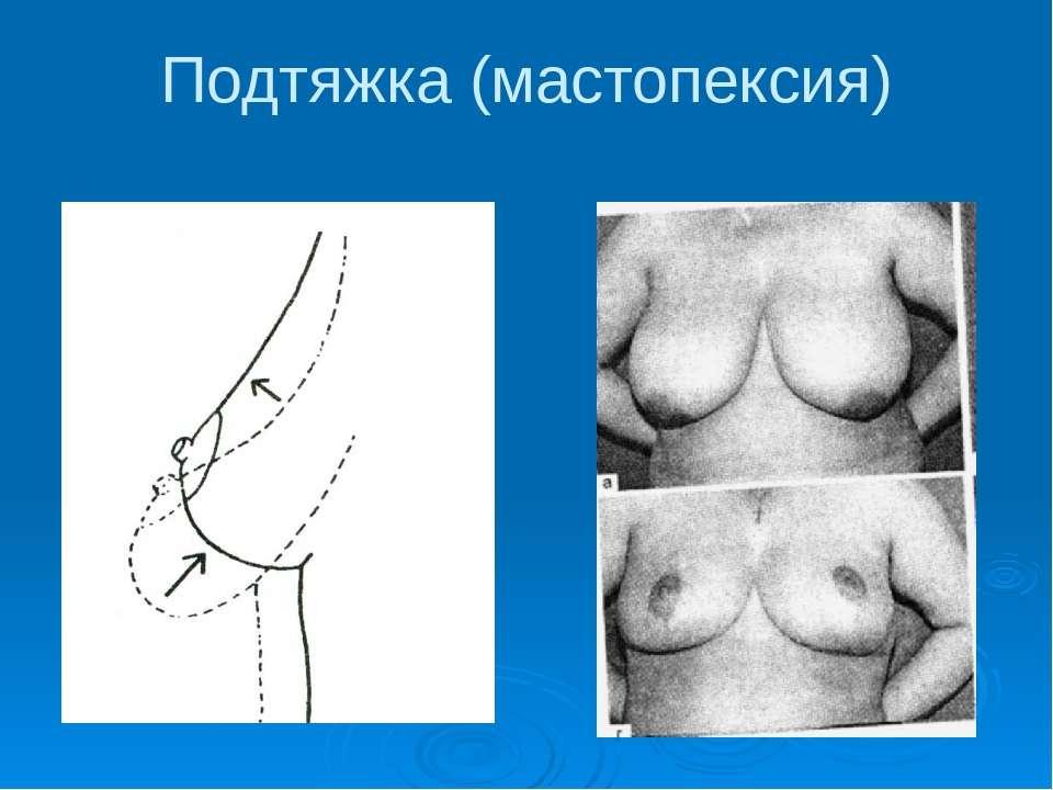 Подтяжка (мастопексия)