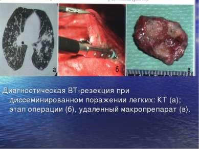 Диагностическая ВТ-резекция при диссеминированном поражении легких: КТ (а); э...