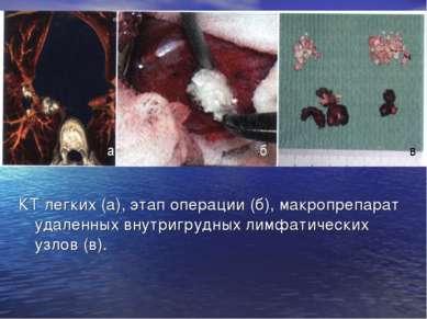 КТ легких (а), этап операции (б), макропрепарат удаленных внутригрудных лимфа...