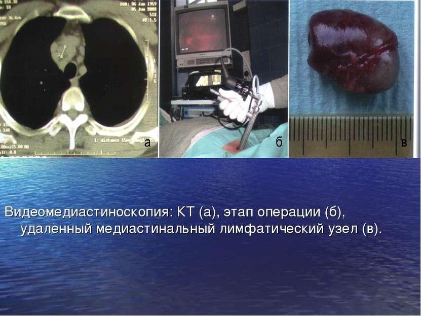 Видеомедиастиноскопия: КТ (а), этап операции (б), удаленный медиастинальный л...