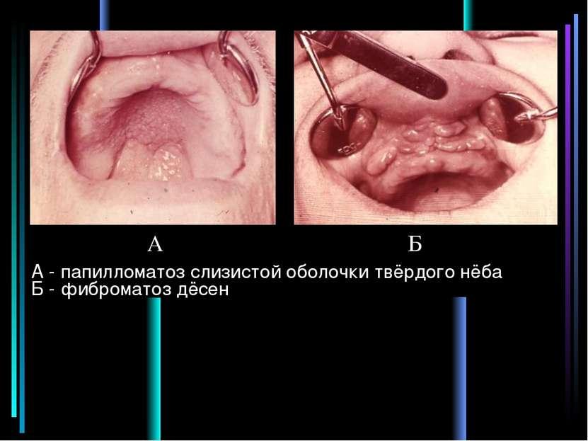 А - папилломатоз слизистой оболочки твёрдого нёба Б - фиброматоз дёсен А Б