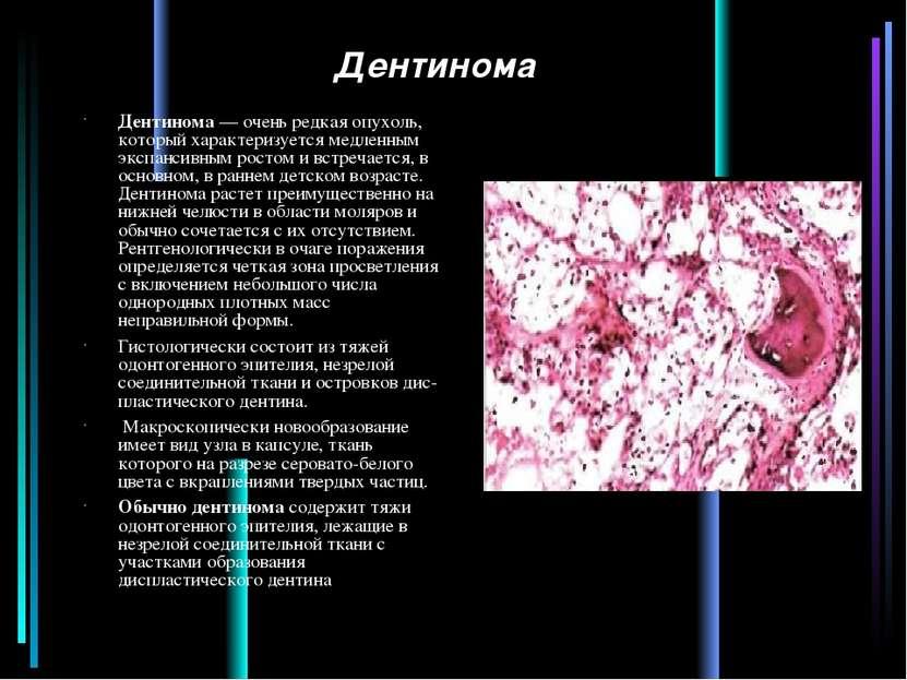 Дентинома Дентинома — очень редкая опухоль, который характеризуется медленным...