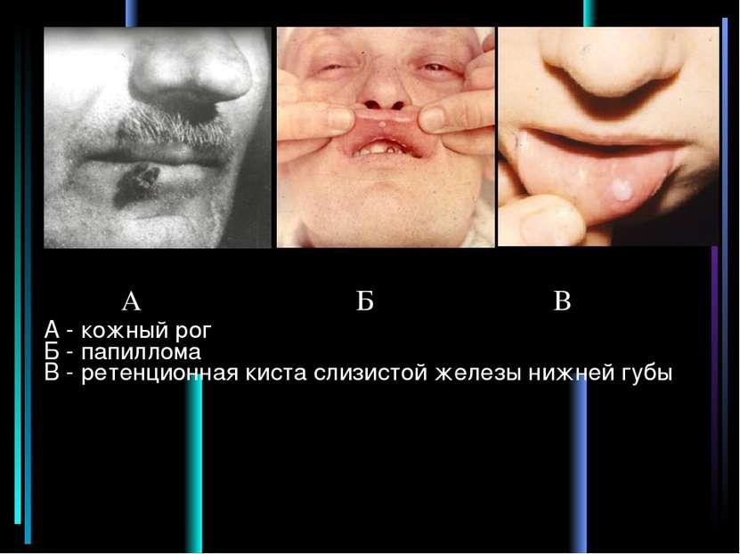 А - кожный рог Б - папиллома В - ретенционная киста слизистой железы нижней г...