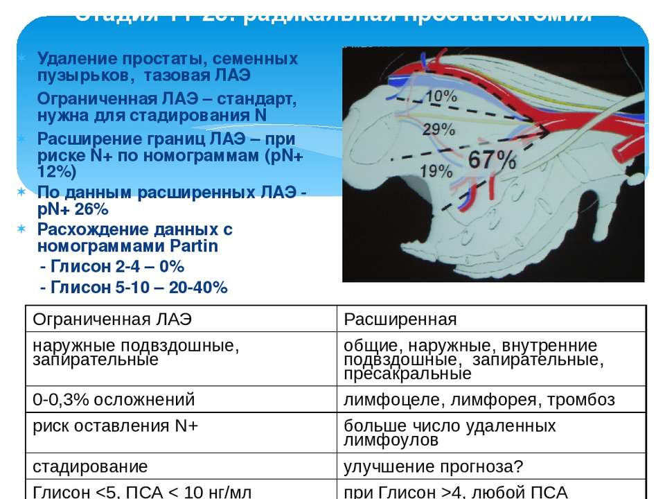 Стадия Т1-2с: радикальная простатэктомия Удаление простаты, семенных пузырько...