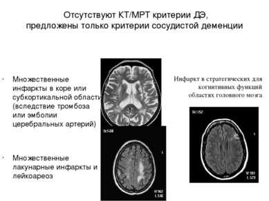 Отсутствуют КТ/МРТ критерии ДЭ, предложены только критерии сосудистой деменци...