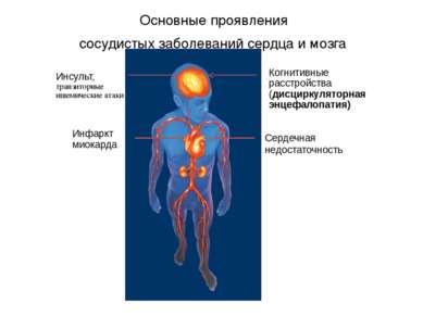 Основные проявления сосудистых заболеваний сердца и мозга Когнитивные расстро...