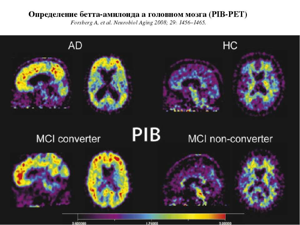 Определение бетта-амилоида а головном мозга (PIB-PET) Forsberg A, et al. Neur...