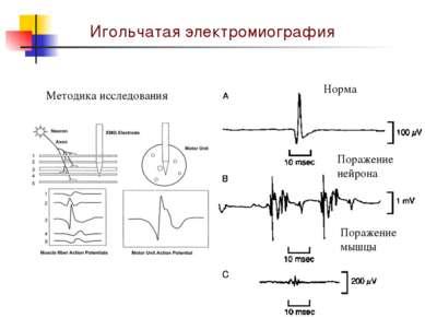 Игольчатая электромиография Методика исследования Норма Поражение нейрона Пор...