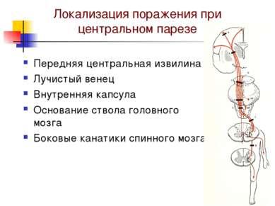 Локализация поражения при центральном парезе Передняя центральная извилина Лу...