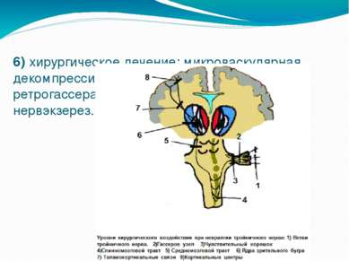 6) хирургическое лечение: микроваскулярная декомпрессия корешка нерва, ретрог...