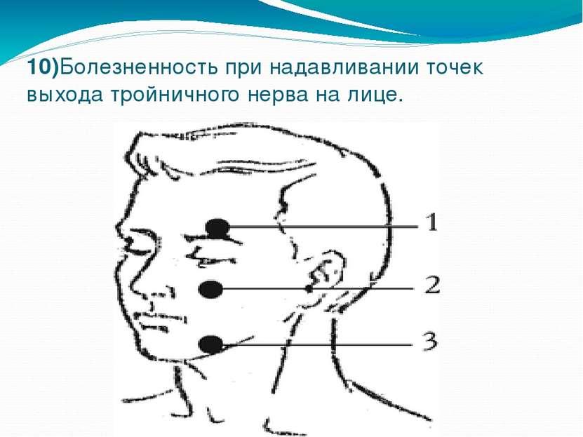 10)Болезненность при надавливании точек выхода тройничного нерва на лице.