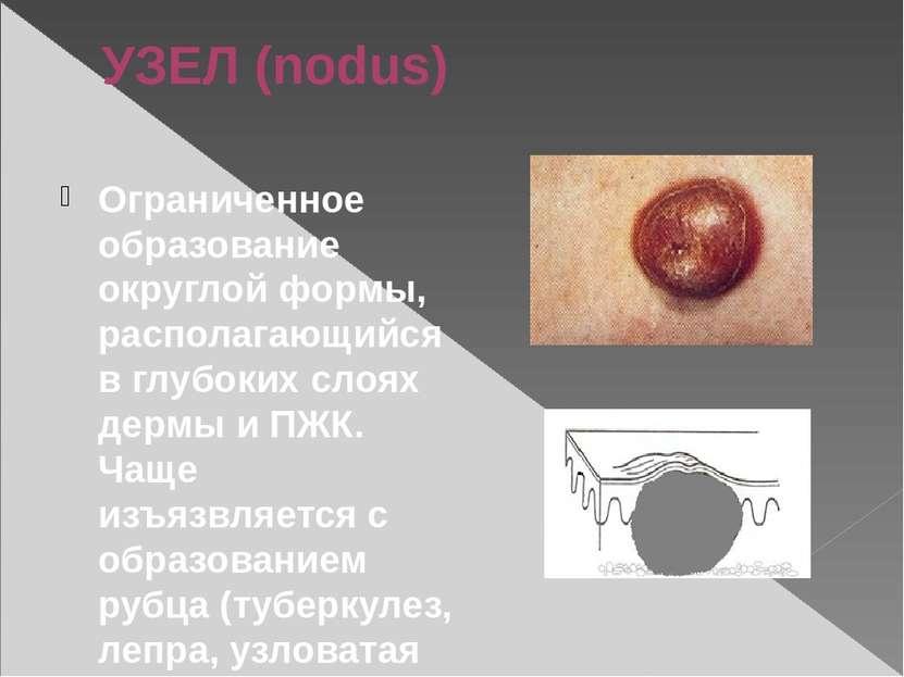 УЗЕЛ (nodus) Ограниченное образование округлой формы, располагающийся в глубо...
