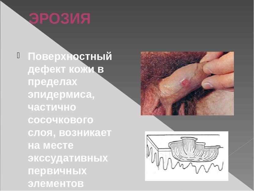 ЭРОЗИЯ Поверхностный дефект кожи в пределах эпидермиса, частично сосочкового ...