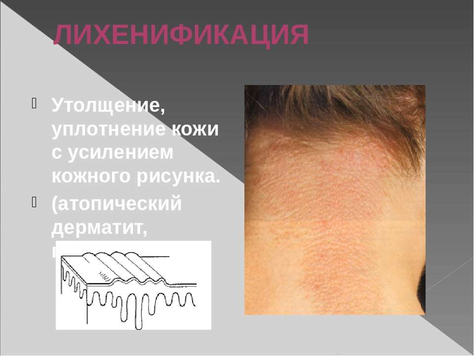 ЛИХЕНИФИКАЦИЯ Утолщение, уплотнение кожи с усилением кожного рисунка. (атопич...