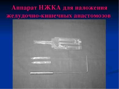 Аппарат НЖКА для наложения желудочно-кишечных анастомозов