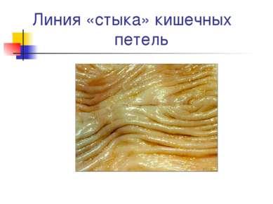 Линия «стыка» кишечных петель