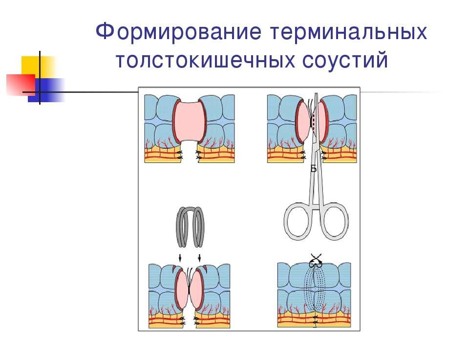 Формирование терминальных толстокишечных соустий