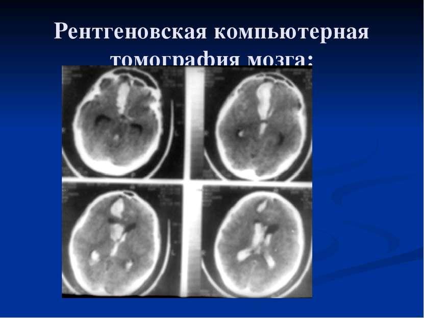 Рентгеновская компьютерная томография мозга: