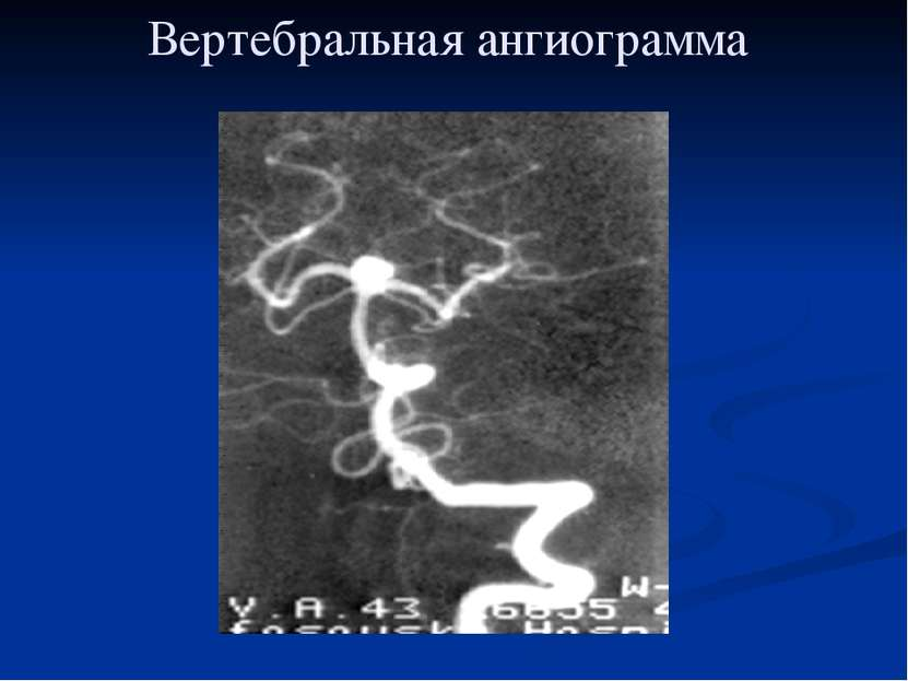 Вертебральная ангиограмма