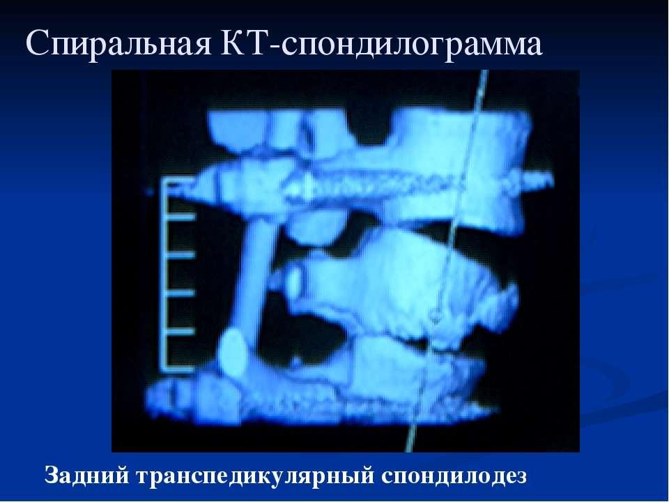 Спиральная КТ-спондилограмма Задний транспедикулярный спондилодез