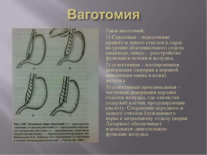 Типы ваготомий: 1) Стволовая – пересечение правого и левого стволов n.vagus н...