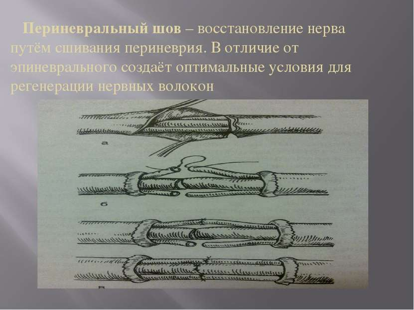 Периневральный шов – восстановление нерва путём сшивания периневрия. В отличи...