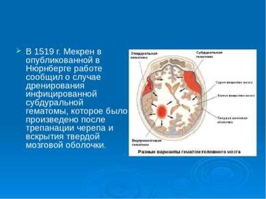 В 1519 г. Мекрен в опубликованной в Нюрнберге работе сообщил о случае дрениро...